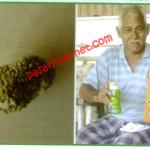 Testimoni bapak jusof kencing batu karang